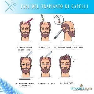 fasi del trapianto di capelli